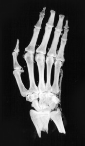 X-ray of the mummified hand